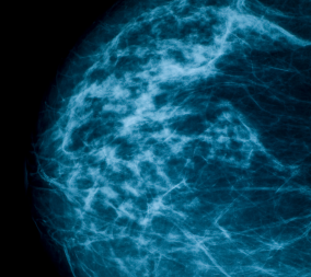 x-ray image of breast density on mammograms